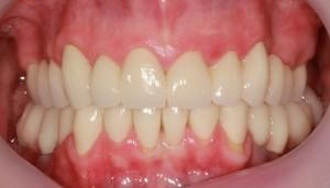 Reabilitare totala prin implanturi si coroane dentare