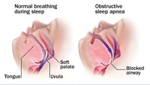 Apneea in somn – tratament si simptome