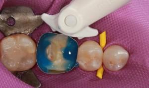 Diga dentara – bariera de protectie impotriva bacteriilor din cavitatea orala