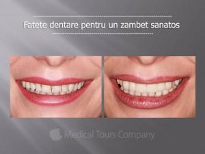 Top 3 beneficii ale fatetelor dentare ceramice