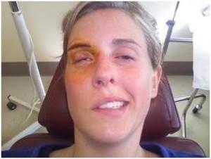 alergiile in stomatologie