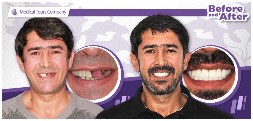 Lipsa dintilor si imbatranirea prematura