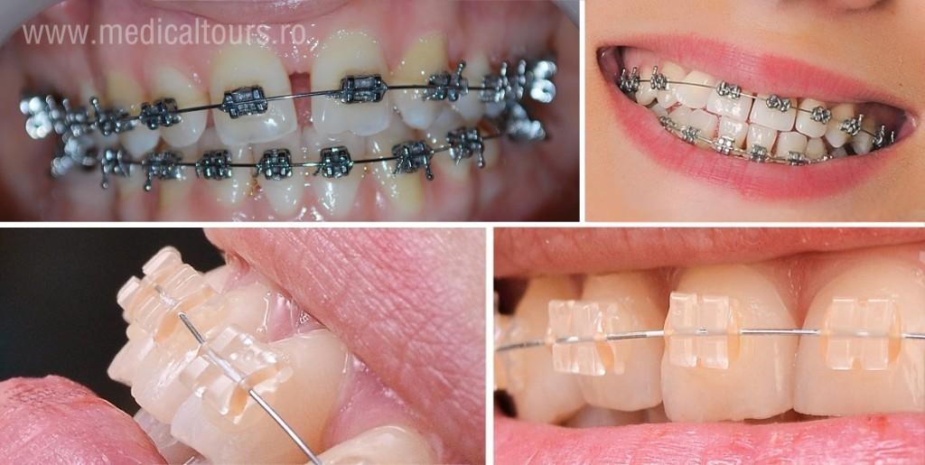 ORTODONTIA sau ce stim, de fapt, despre aparatul dentar