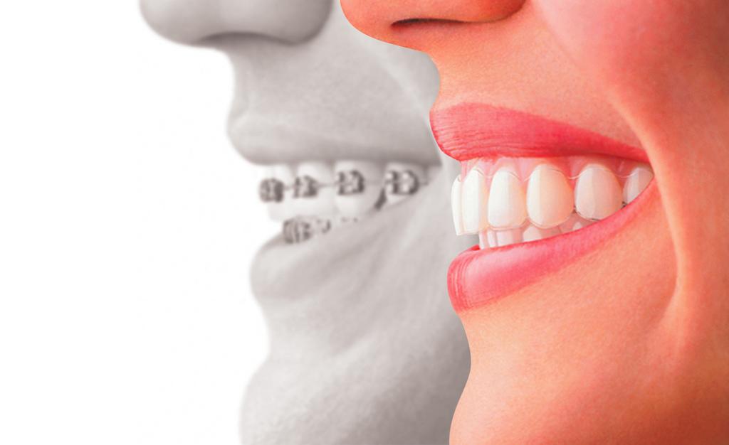 Clear Aligner versus aparate dentare traditionale