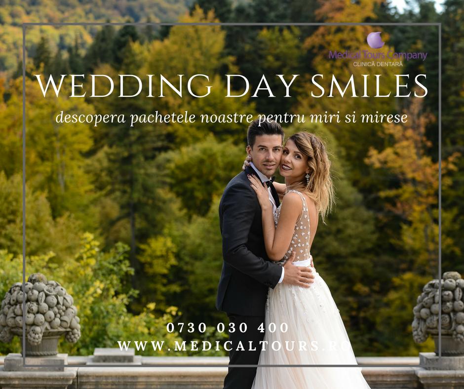 Ziua nuntii: tips & tricks