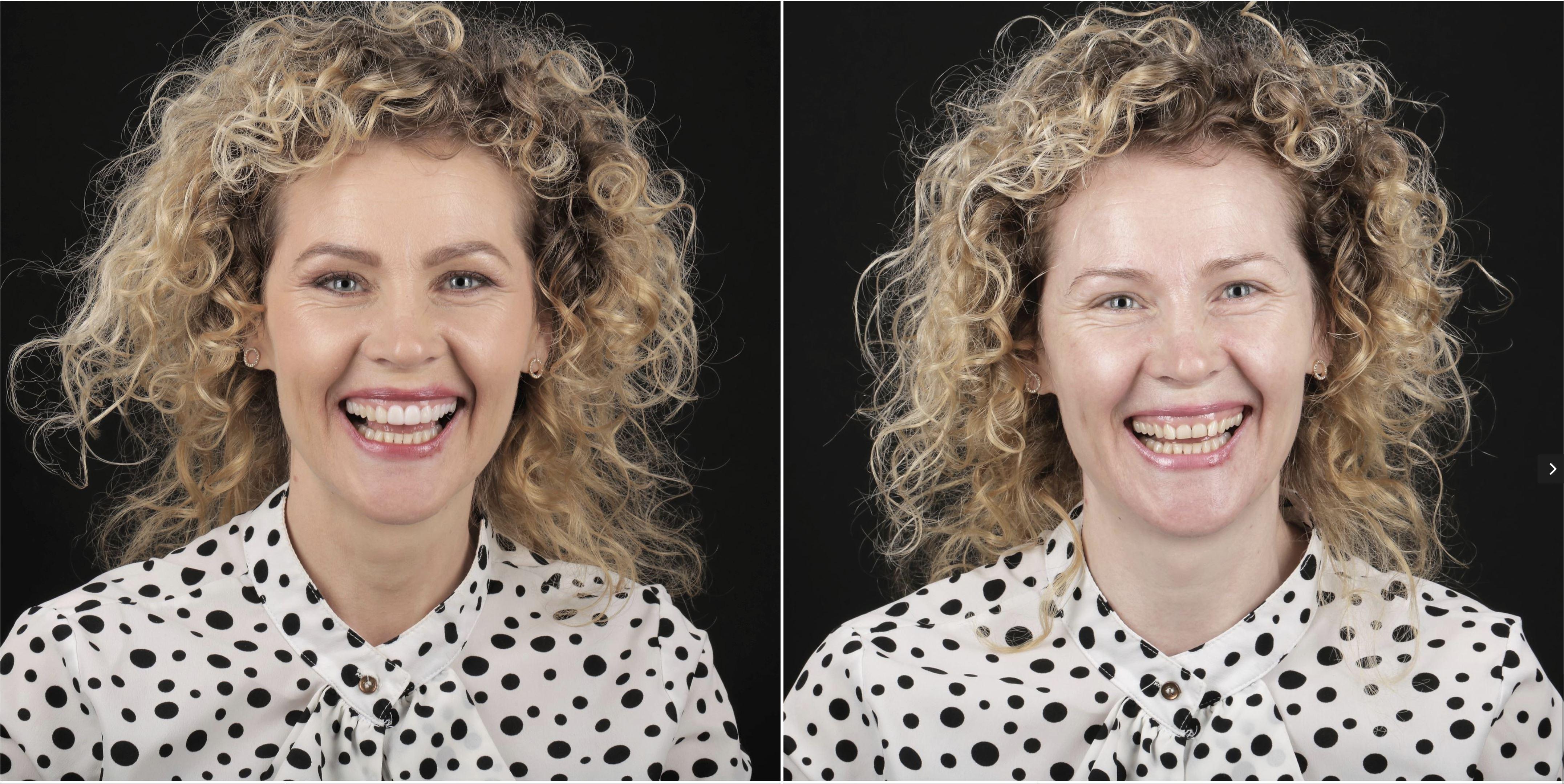 Ce este un Digital Smile Design?